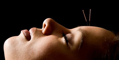 Acupuntura para dor de cabeça | Central da Acupuntura